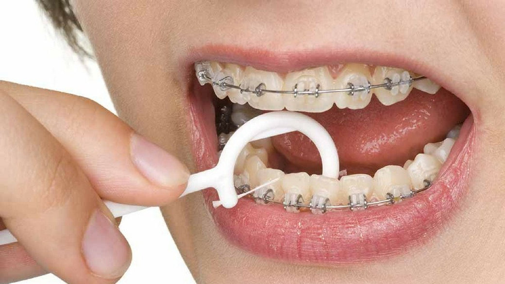 While braces wearing gums swollen This Is