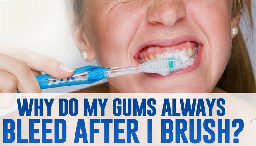 Do your Gums bleed while brushing? Reasons, Treatments, and Solutions!