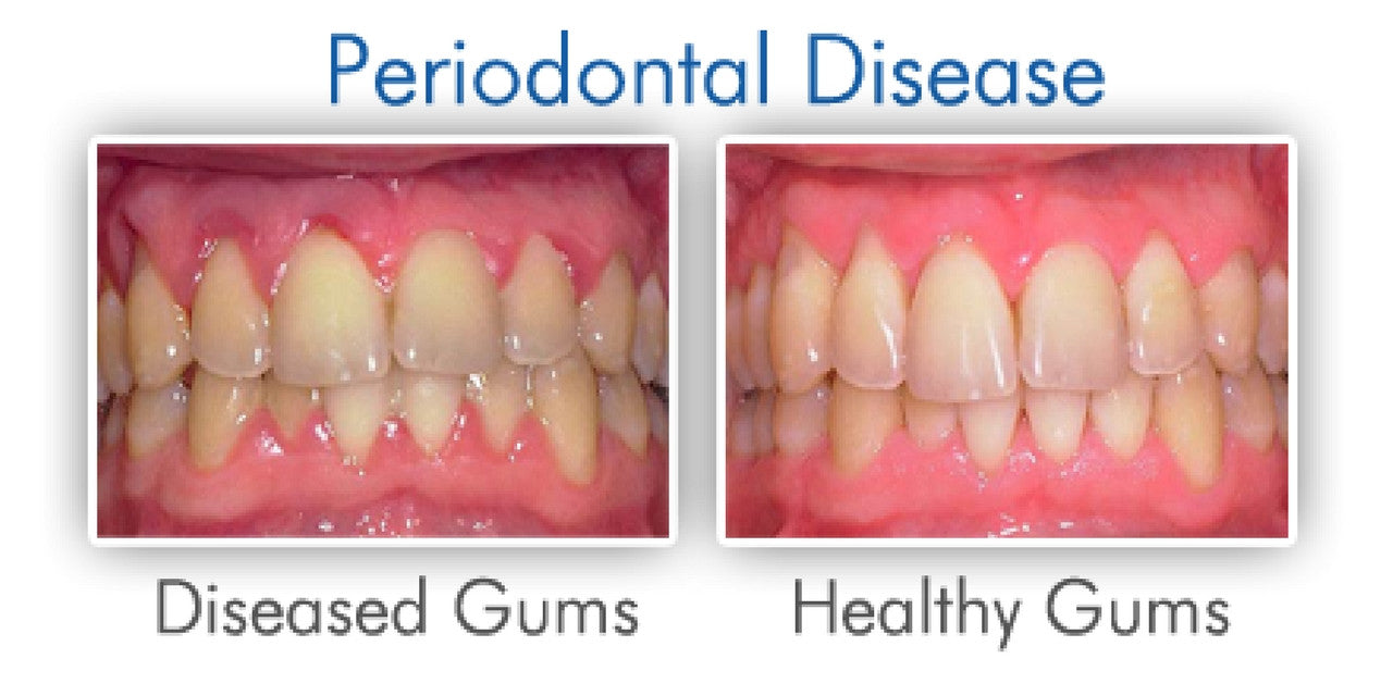 Natural Remedies For Gum Disease Lumineux Oral Essentials