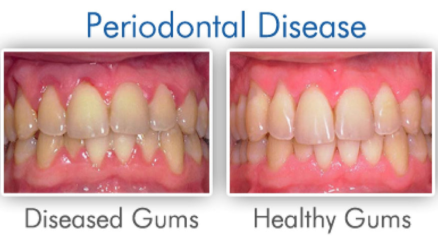 Natural Remedies for Gum Disease