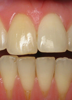What Causes Receding Gums and How to Treat Them?