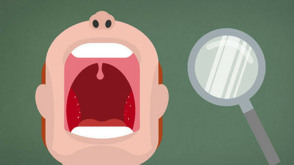 Everything you need to know about Tonsil Stones