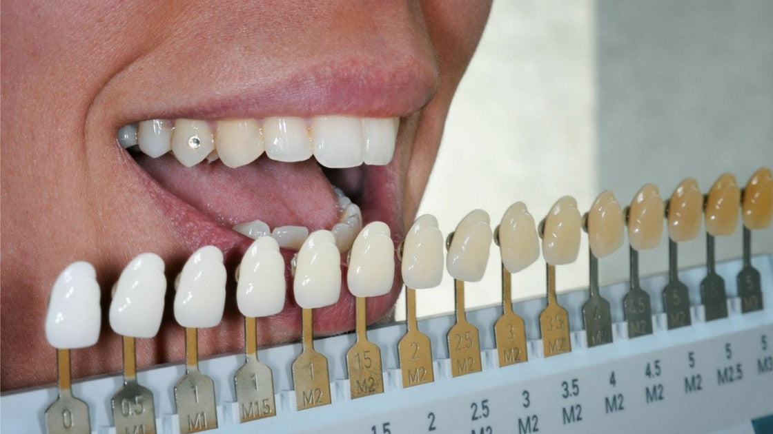 """image about Tooth Shade Chart Printable named How in the direction of Calculate your Teeth Coloration! Lumineux Oral Essentialsâ""""¢"""