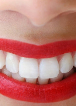 The Whitening Epidemic - Are You Ruining Your Teeth?