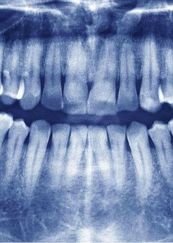 Wisdom Teeth Problems, Solutions, and Symptoms