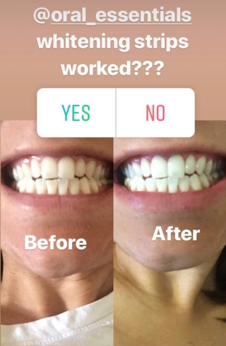 Before Afters Lumineux Oral Essentials