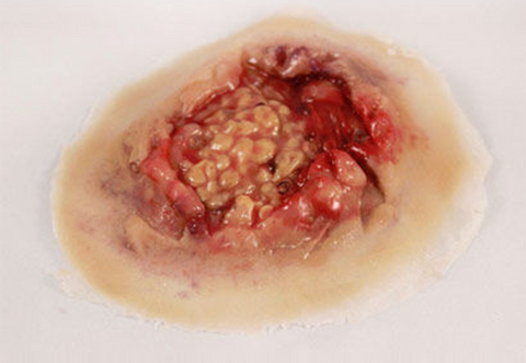 Adipose (Fatty) Tissue