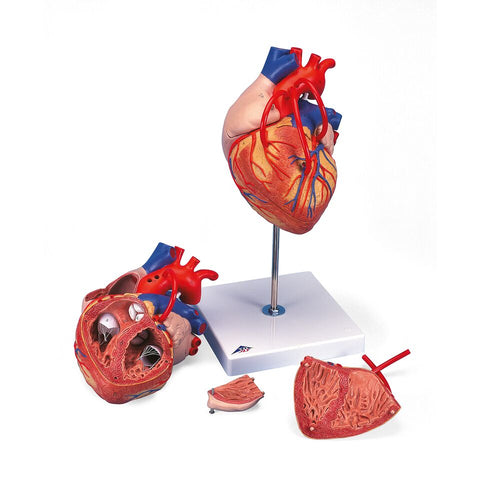 Heart with Bypass 2-Times Life Size 4-Part
