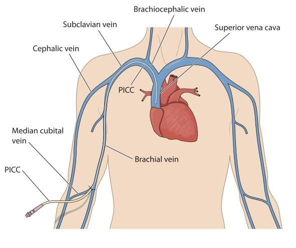 What is a PICC line?