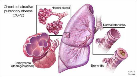 Mayo Clinic Pulmonary Hypertension