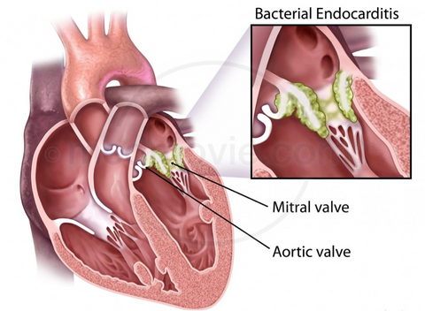 What is Endocarditis and What Causes It? - Care+Wear