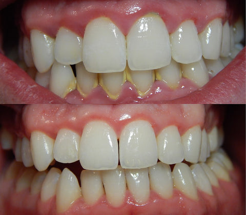 gum disease starts with plaque around the teeth