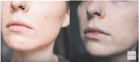 jojoba oil acne before and after 2