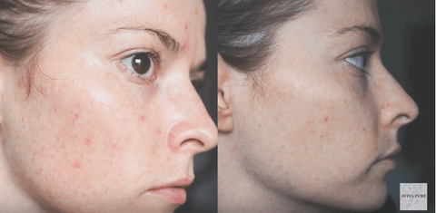 jojoba oil acne before and after 5