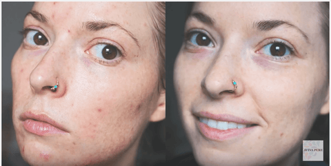 jojoba oil acne before and after