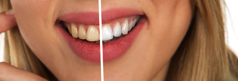 Coocpull naturally whitens teeth, maintains fresh breath and prevents cavities