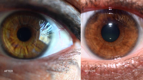 P2 Before and After Iris Colour