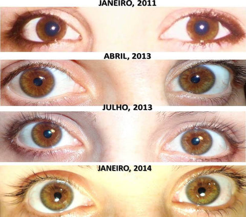 P3 Before After Colour iris 3