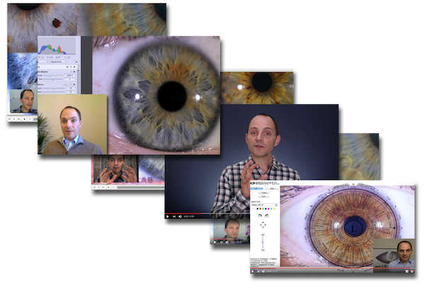 Advanced Iridology Course