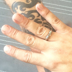 Snakebite Ring