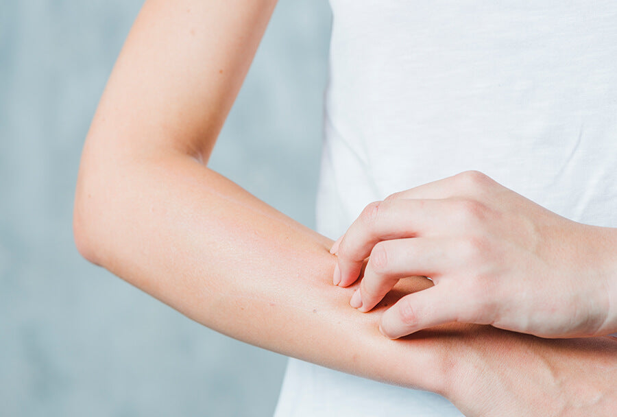 Could You Have Skin Allergies?