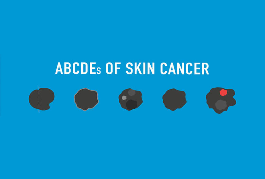 Know Your Spots: The ABCDE's of Skin Cancer