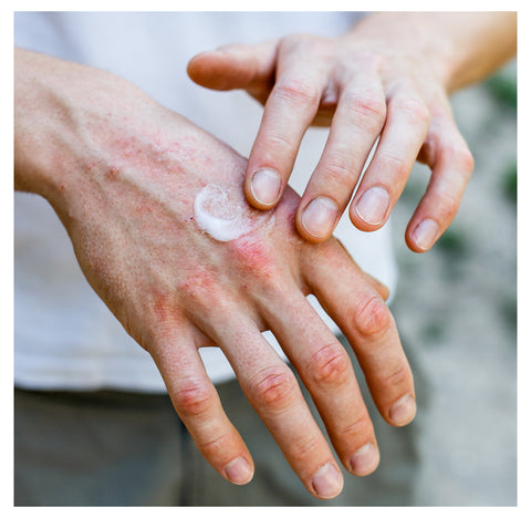 A hand with visible eczema, lotion is being applied to the affected area