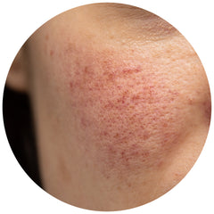 A woman's cheek during a rosacea flare-up