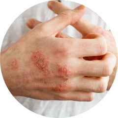 A woman's hands with raised patches of eczema