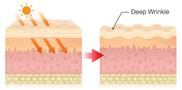 A diagram illustrating how UV rays cause wrinkles.