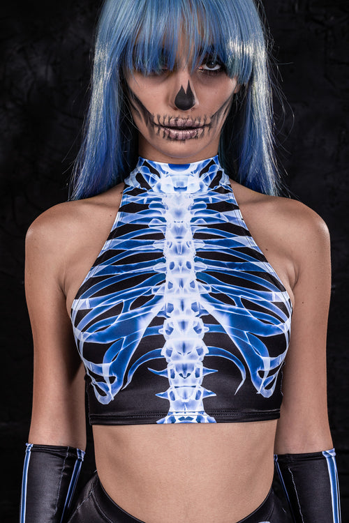 X-Ray Skeleton Fit Top