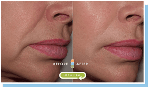 Impress facial pads before and after side face image