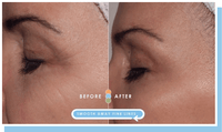 Impress facial pads before and after eyes image