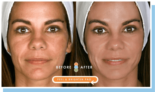 Impress facial pads before and after front image