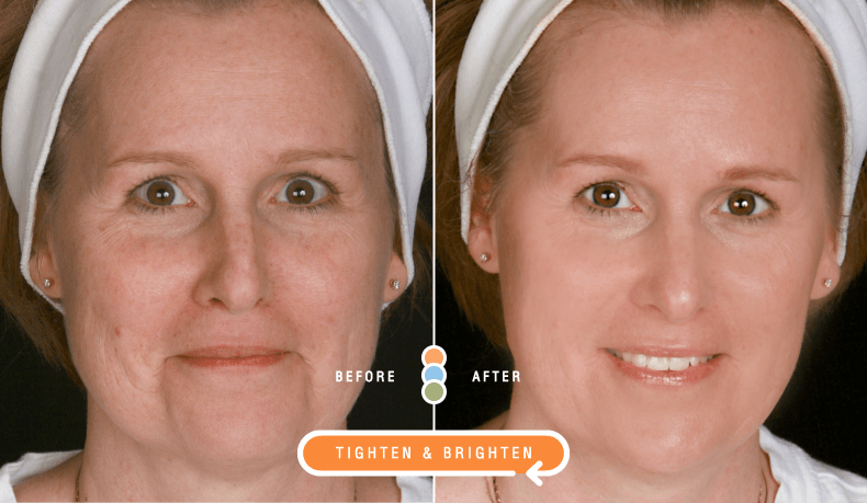 Impress Skincare Before and After Anti-aging Results