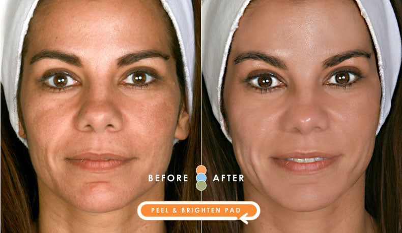 Impress facial pads before and after face application