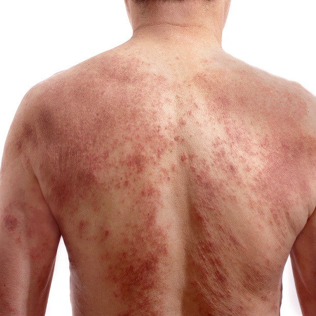 What is red skin syndrome?