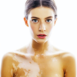 Skin Disorders, Causes & Treatments