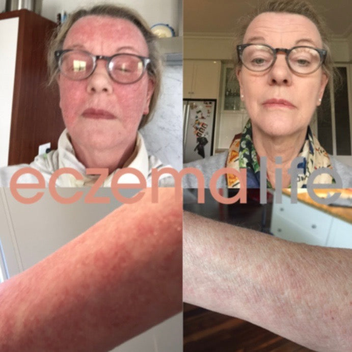 Eczema Life Before & After (our success stories)