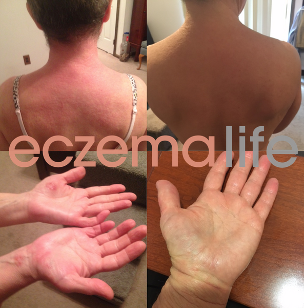Before and after the eczema diet