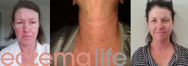 Eczema diet before and after image Amanda