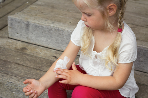 Is it safe to use topical steroids on my child? – Eczema Life
