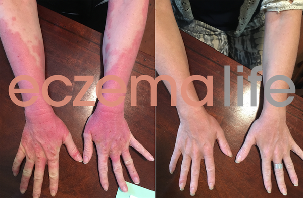Eczema before and after Skin Friend The Eczema Detox
