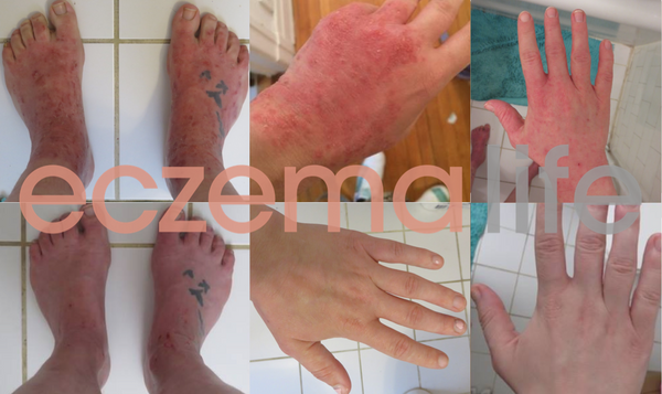 Eczema detox before and after photos