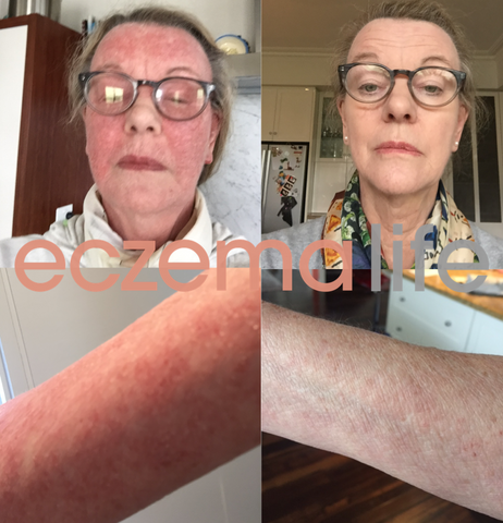 Eczema diet and Skin Friend before and after images