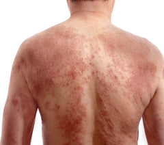 Itchy dozen signs you have topical steroid withdrawal