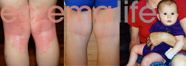 Ayva's eczema before and after the eczema diet