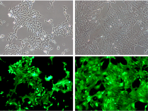 Normal 4T1 morphology in 4T1-eGFP-Puro cells, high GFP expression