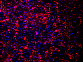 Immunofluorescent staining of sodium iodide symporter (NIS) expressing Mel624 cells stained with anti-NIS VJ2 antibody using Alexa 555 secondary