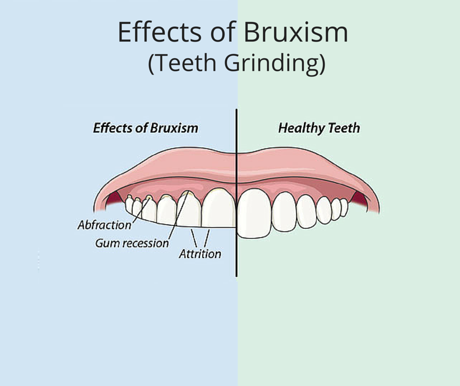 4 things you didn't know about Bruxism - AKA - Grinding, Clenching, Clacking or Gnawing